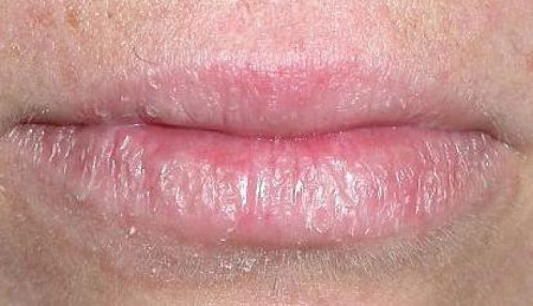 Атопический дерматит на губах лечение