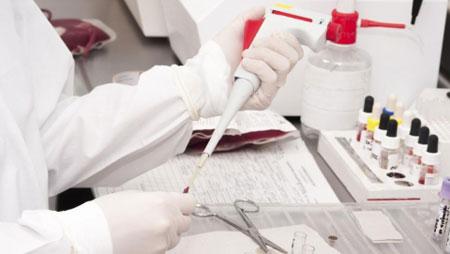 Биохимический анализ крови: расшифровка у взрослых, норма в таблице