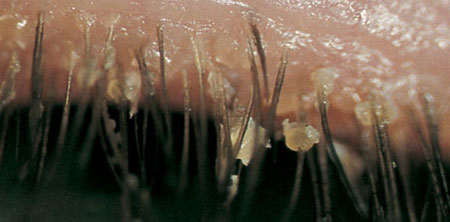 Блефарит симптомы крупным планом фото