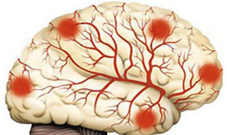 Дисциркуляторная энцефалопатия (ДЭП) 2 степени: симптомы ...