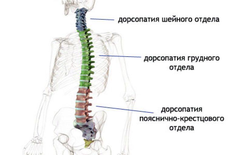 Гимнастика при дорсопатии шейного отдела