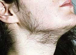 Гирсутизм у женщин фото 3