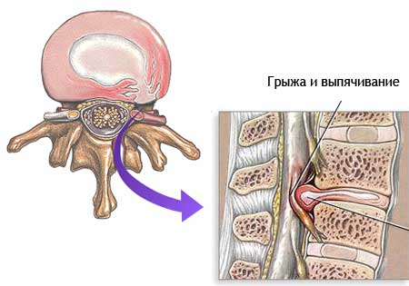 Кифоз грудного отдела позвоночника 1-2 степени
