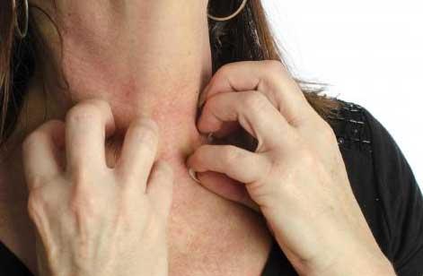 Лечение чесотки препараты мази