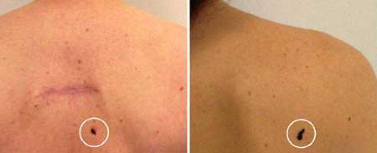 ранняя стадия рака кожи фото № 66276 бесплатно