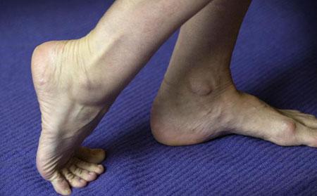 Лечение судорог в ногах