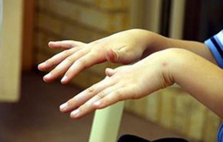 Почему трясутся руки причины у молодых