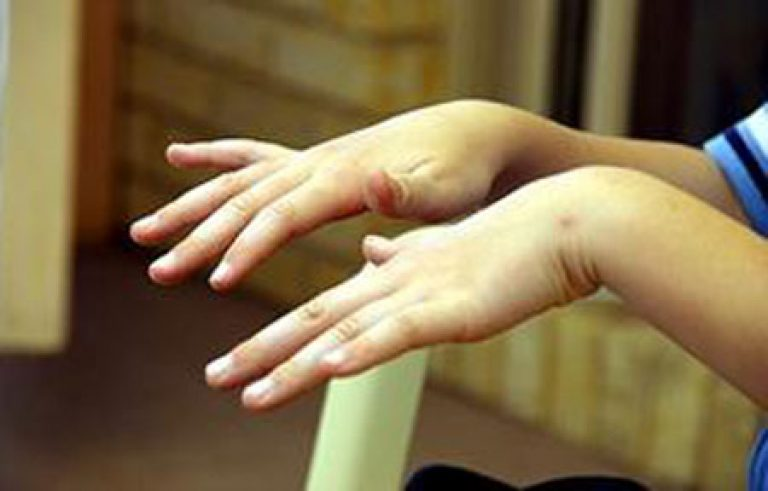 Почему могут трястись руки у подростка