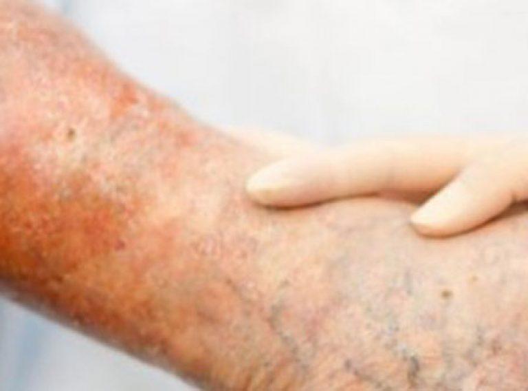 Как лечит кожу потемневшую от трофической язвы