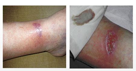 Начальная стадия трофической язвы (фото) и лечение (заживление)
