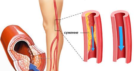 Облитерирующий атеросклероз сосудов нижних конечностей