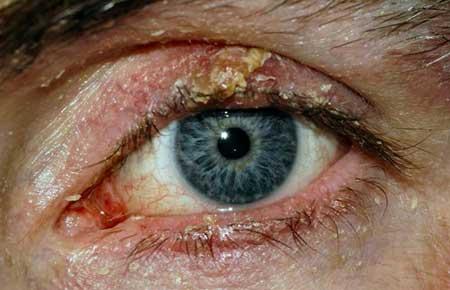 Первые симптомы блефарита, фото