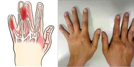 Артрит полиартрит симптомы причины профилактика лечение