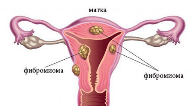 Фибромиома матки - симптомы и признаки, лечение