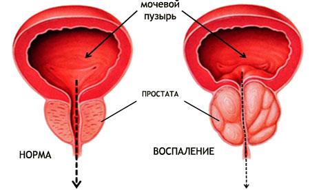 В сперме у мужчин паразиты