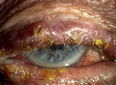 Симптомы блефарита, фото