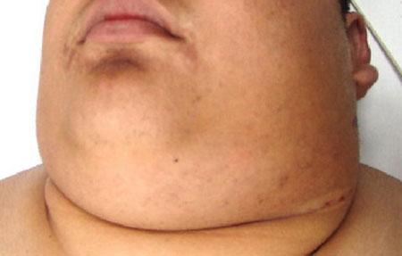 Симптомы болезни Ходжкина фото