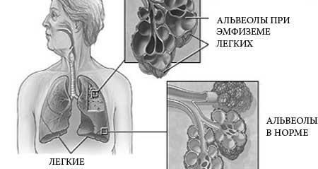 Симптомы эмфиземы легких