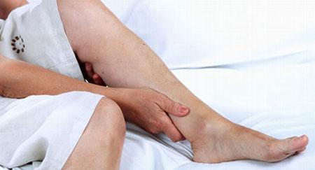 Симптомы облитерирующего атеросклероза сосудов нижних конечностей