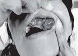 Симптомы первичного гиперпаратиреоза
