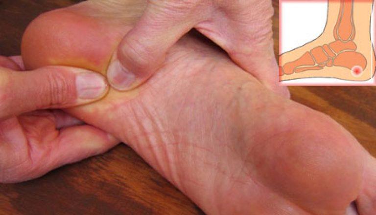 Как выглядит шпора на ступне лечение