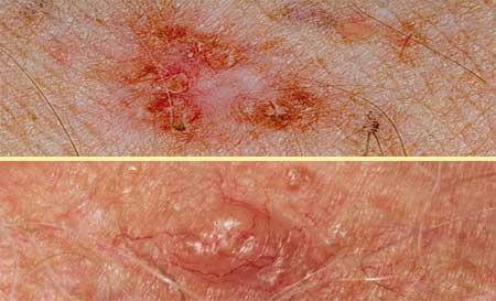 Симптомы рака кожи фото