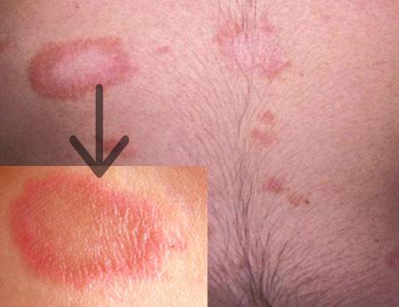 розовый лишай у человека фото признаки и лечение