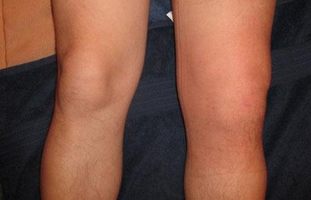 Симптомы синовита коленного сустава