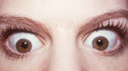 Симптомы тиреотоксикоза у женщин