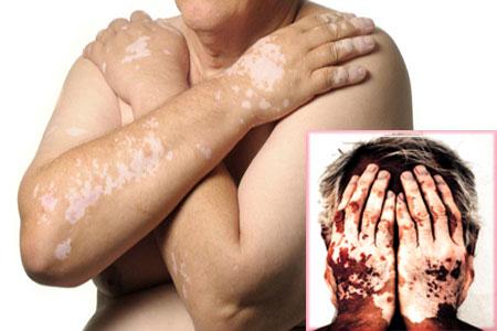 Хвороба вітіліго фото