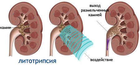 Жирная себорея лица симптомы и лечение