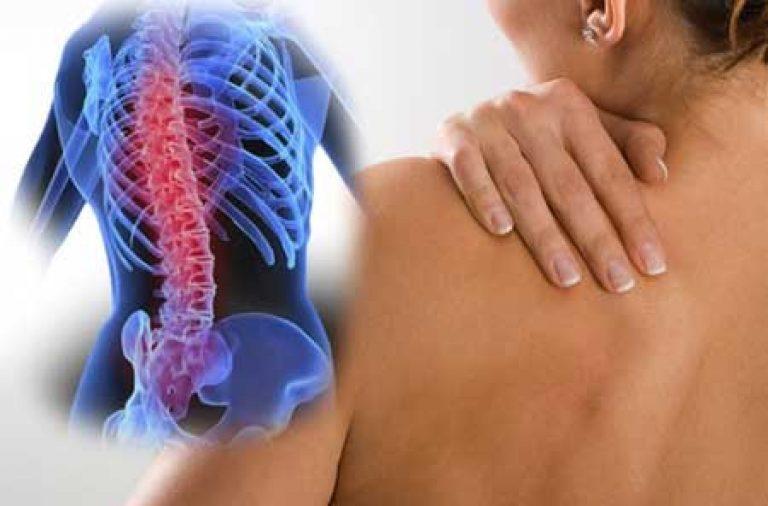 Что делать когда обострился остеохондроз