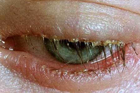 признаки блефарита, фото