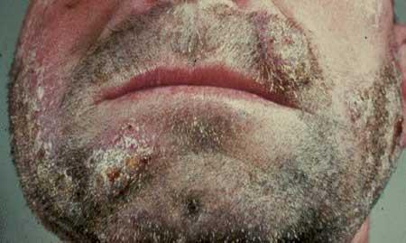 Cтригущий лишай у человека - лечение, симптомы (фото), начальная стадия