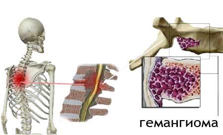 Гемангиома позвонка (позвоночника) - симптомы и лечение, опасность