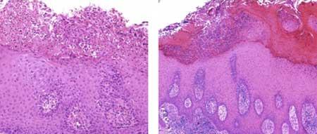 Гиперкератоз плоского эпителия
