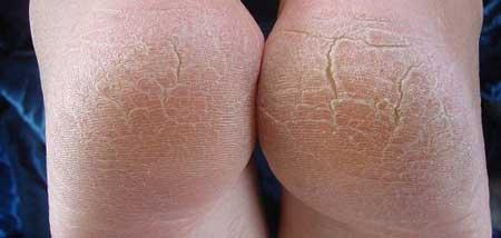 Гиперкератоз стопы