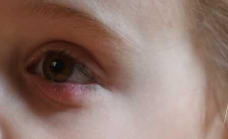 Халязион у ребенка, фото