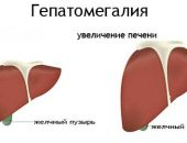 Признаки гепатомегалии