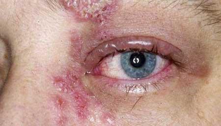 Симптомы опоясывающего лишая на голове и лице