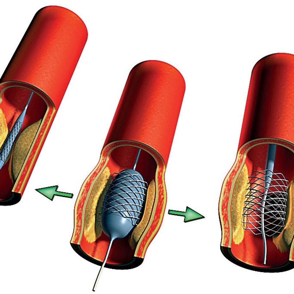 Баллонная ангиопластика со стентом