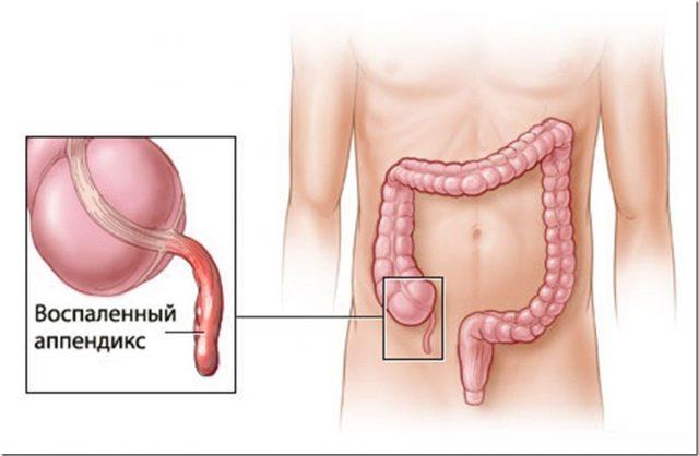 Аппендицит у человека