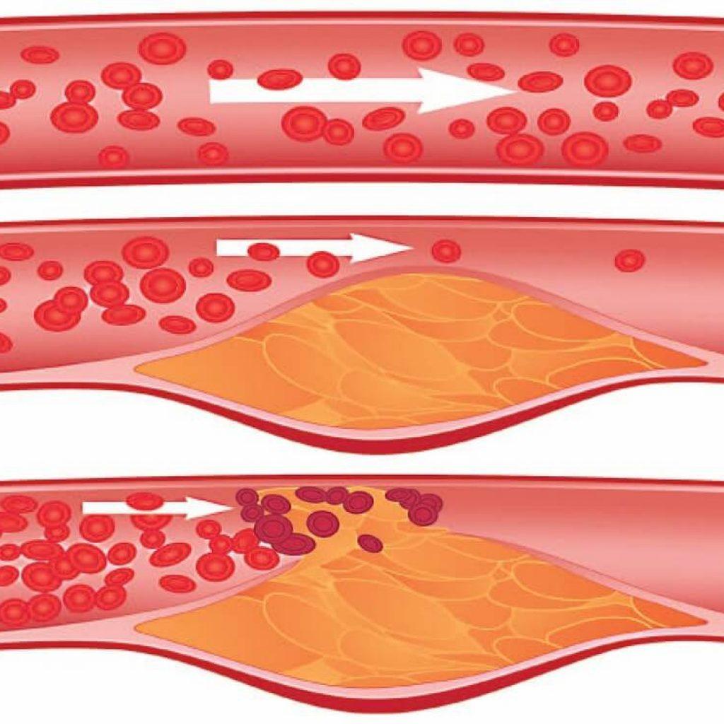 Схема формирования атеросклеротической бляшки в кровеносном сосуде