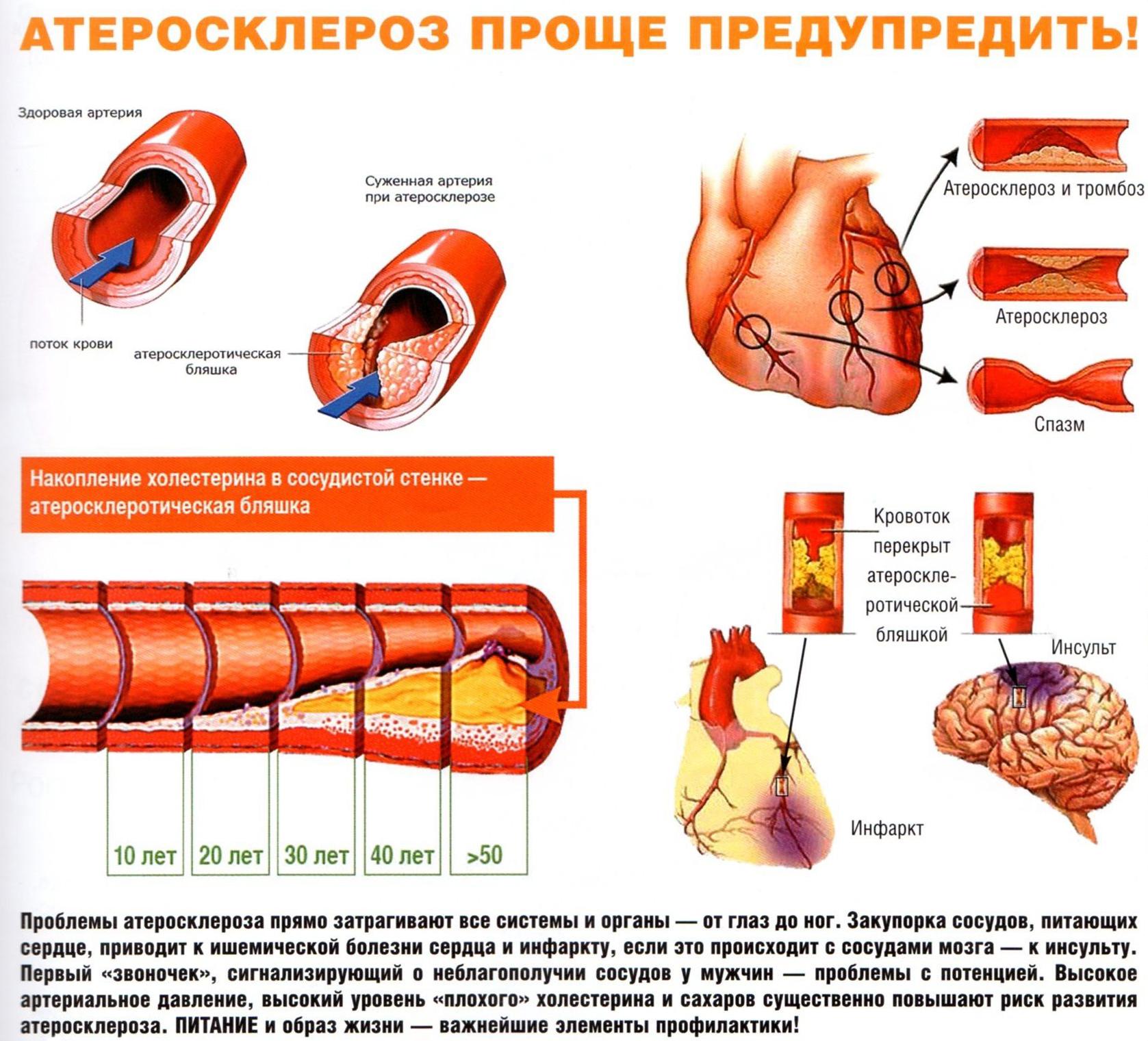 Нестабильная стенокардия: симптомы и лечение, класификация и ...