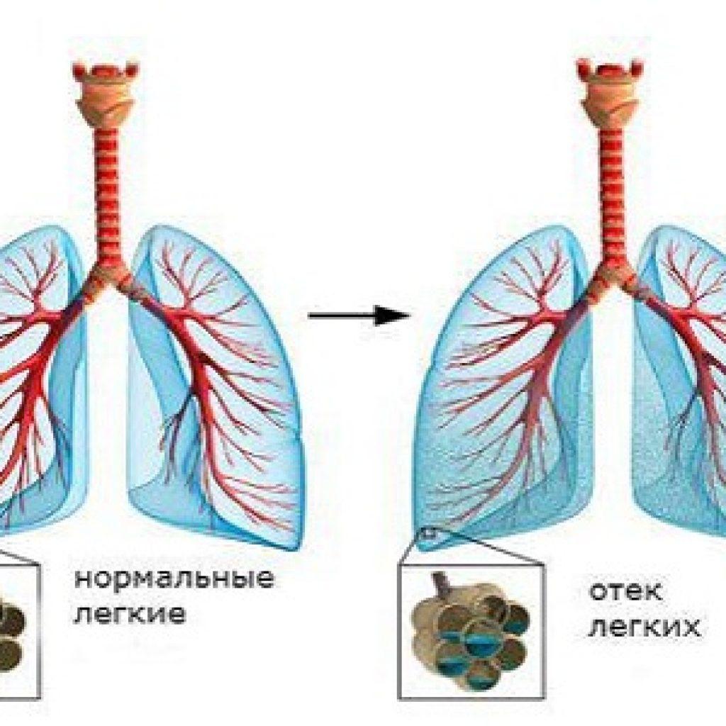 Отёк лёгких