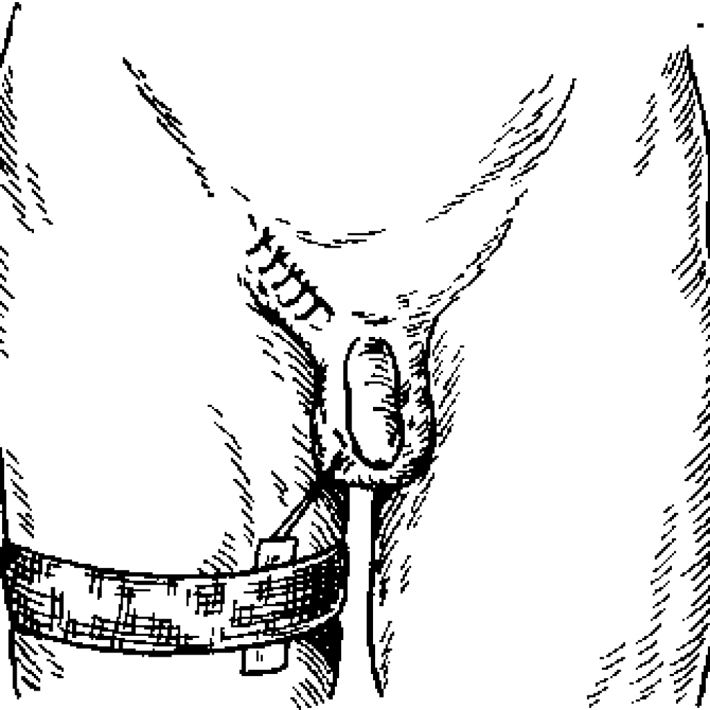 Пациент после орхипексии