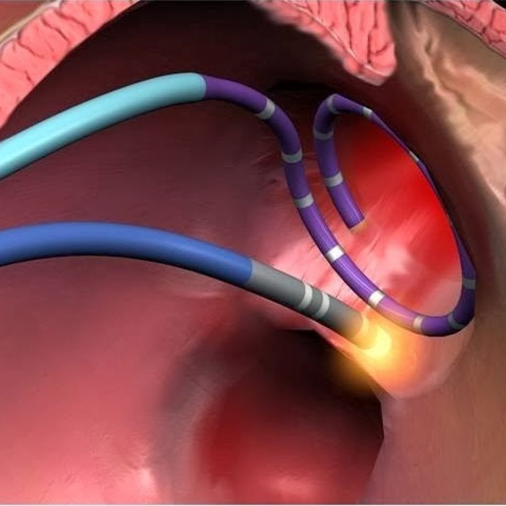 Что такое абляция сердца