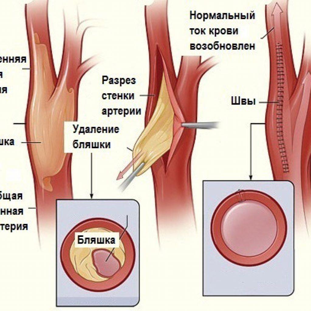 Схема проведения эндартерэктомии