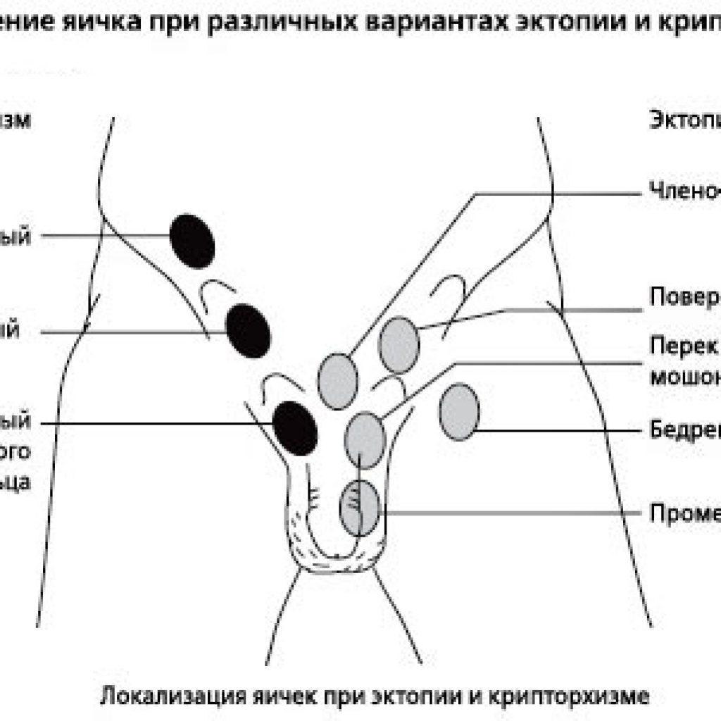 Типы эктопии