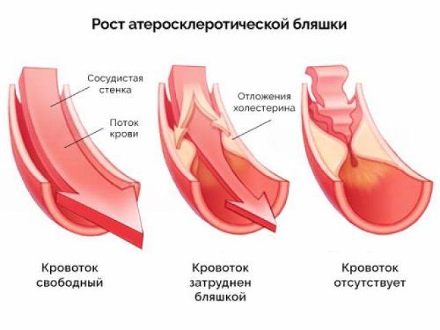 атеросклеротические бляшки на сосудистых стенках